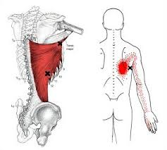 Latissimus Muscle  Triggerpoint Referral Pattern