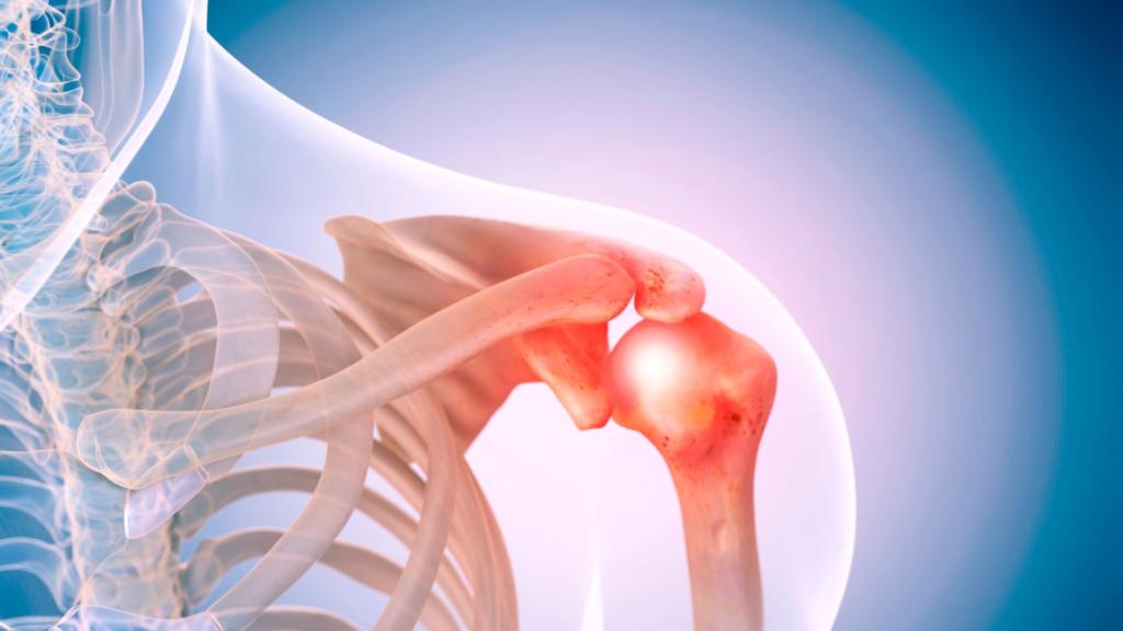 the facepull shoulder prehab